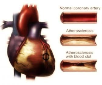 Aterosclerosis: síntomas, causas y tratamientos de la aterosclerosis
