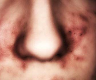 Tratamiento de la dermatitis seborreica