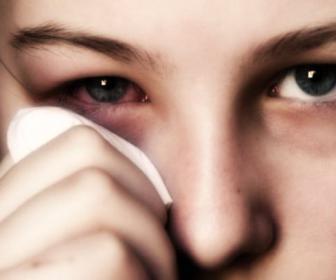 Conjuntivitis alérgica en niños: terapia y síntomas.