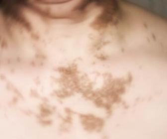 Una cura para el vitiligo