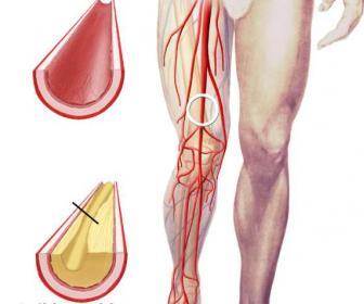 Curas naturales de arteriosclerosis