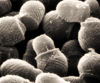 Curas naturales de la dermatitis seborreica