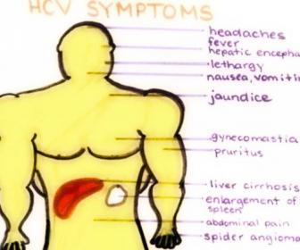 Curas naturales de la hepatitis c