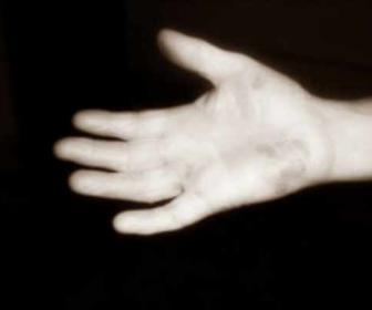 Dermatitis de manos
