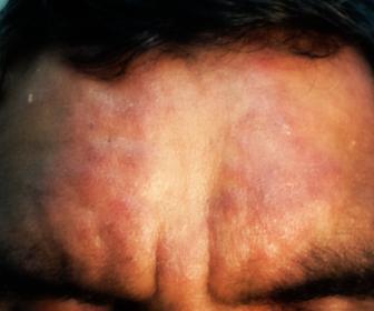 Dermatitis actínica crónica