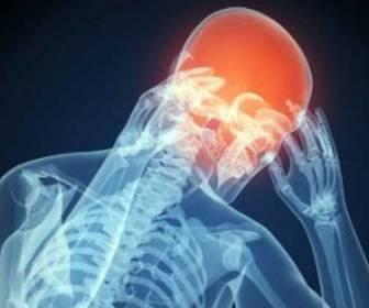 síntomas de dolor de cabeza