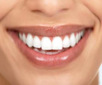 Carillas dentales: carillas para los dientes