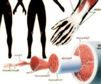Fibromialgia (causa síntomas y cura)