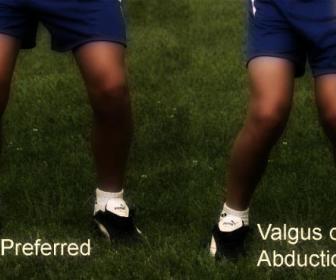 Piernas de valga: rodillas en forma de X