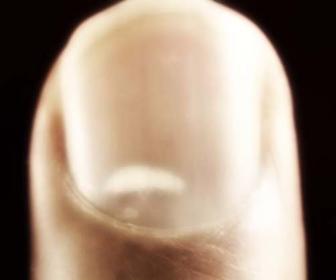 Manchas blancas en las uñas de los pies y las manos.