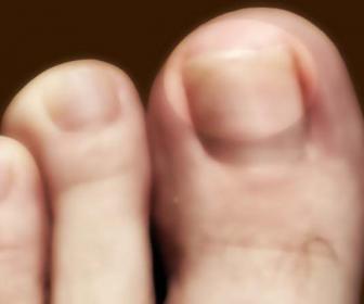 Micosis de las uñas de los pies y las manos.