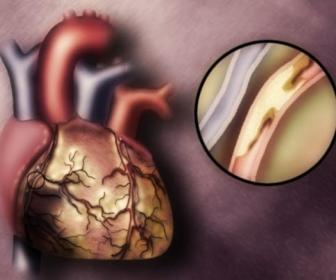 Miocardio Músculo cardíaco