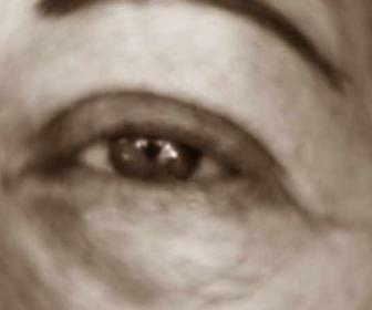 Ojos cansados e hinchados