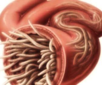 Curas naturales para los parásitos intestinales