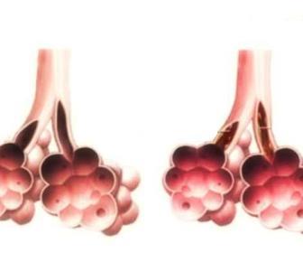 Remedios para laringitis, traqueítis, bronquitis.