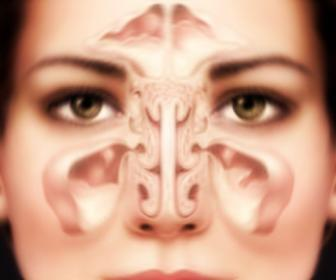 Cura de la sinusitis