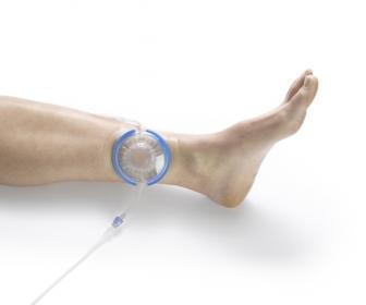 Úlcera de pierna úlcera de pie