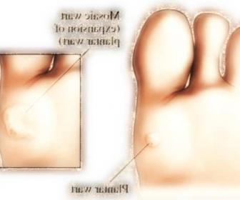 Verrugas plantares: verrugas en los pies